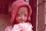 Adalia Rose 6YearOld con envejecimiento prematuro...