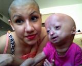 Adalia Rose sufer de progeria