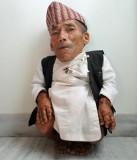 Hombre más corto del mundo Chandra