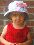 Afflicted Kaylee Halko tiene 3 años y vive en Monc...