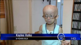 Kaylee Halko s Progeria Playland